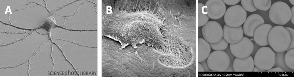 Figure 2:  The differing face of cells. Here we show how cells adapt their morphology (shape) and structure depending on function within the tissue they reside. (A) Nerve cell (http://sciencephotolibrary.tumblr.com/page/38) (B) Osteoclast cell  (http://www.pathologyoutlines.com/topic/bonemarrowosteoclasts), (C) Blood cells, authors own image.