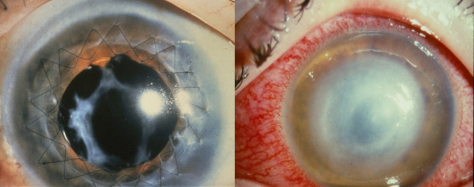 Successful and rejected corneal transplants (L & R, respectively). (Photo credits: Jesper Hjorndal and Oliver Treacy)
