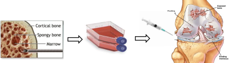 "Figure 5: The concept behind stem cells therapy. Bone marrow is a source of adult stem cells. To obtain the cells, bone marrow is often harvested from the iliac crest (pelvis). The harvested mix of cells undergoes specialised culture techniques to remove contaminating cells to produce a more purified population of cells. These cells are cultured in vitro (which means ""in glass"" but on plastic is a more accurate description!). After several weeks of culturing, sufficient numbers of stem cells are produced which can the injected back into the patient to produce a therapeutic effect. At REMEDI we are using adipose (fat) derived stem cells which we inject into the knee joint space of patients suffering with Osteoarthritis."