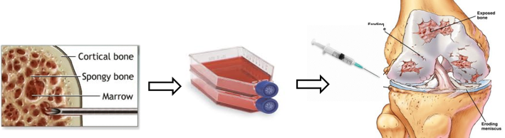 """Figure 5: The concept behind stem cells therapy. Bone marrow is a source of adult stem cells. To obtain the cells, bone marrow is often harvested from the iliac crest (pelvis). The harvested mix of cells undergoes specialised culture techniques to remove contaminating cells to produce a more purified population of cells. These cells are cultured in vitro (which means """"in glass"""" but on plastic is a more accurate description!). After several weeks of culturing, sufficient numbers of stem cells are produced which can the injected back into the patient to produce a therapeutic effect. At REMEDI we are using adipose (fat) derived stem cells which we inject into the knee joint space of patients suffering with Osteoarthritis."""
