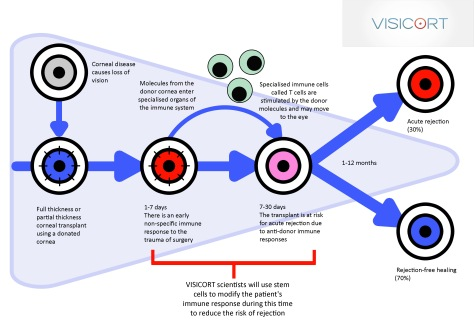 Diagram of current corneal transplantation leading to healing or rejection (Image courtesy of VISICORT)